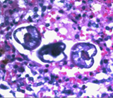 A. lumbricoides larvae in lung tissue:: Image Courtesy Division of Parasitic Diseases/Centers for Disease Control and Prevention